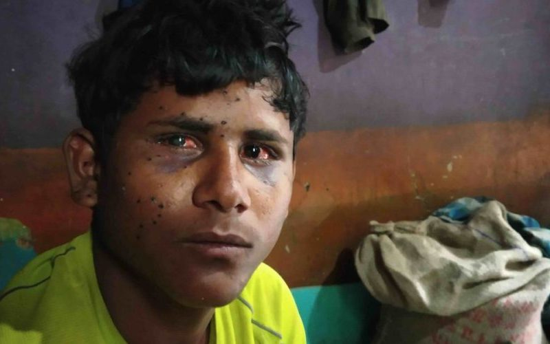Bihari laborer Shahanbaz : A new victim of pellets in Kashmir